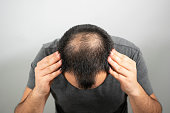 istock sparse hair and bald head problem on a grey background 1245150935