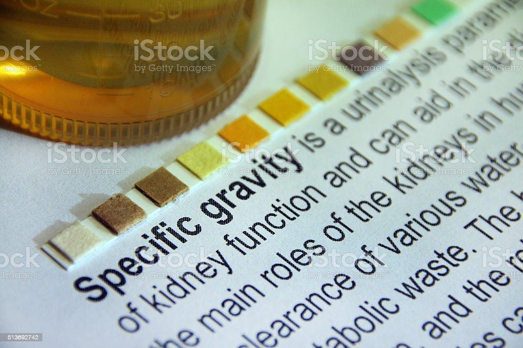 Specific Gravity Urine Test stock photo