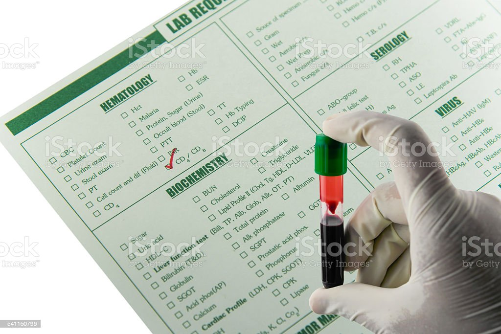 Specimen blood sample stock photo
