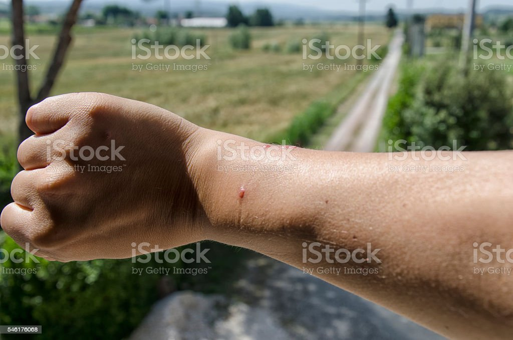 Spider bite on a forearm stock photo