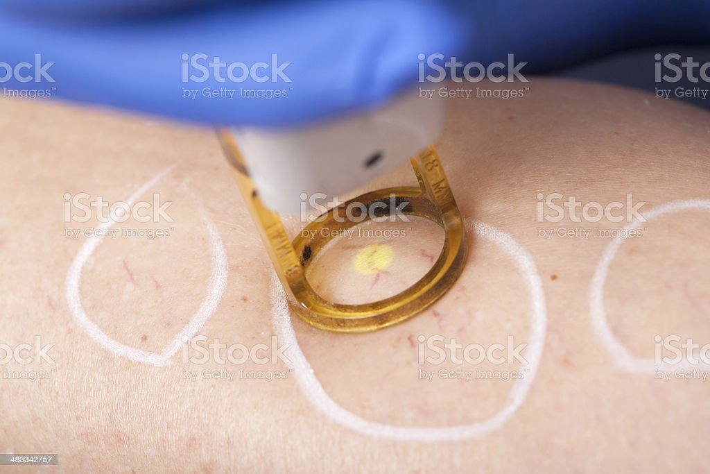 spider vein, medical laser stock photo