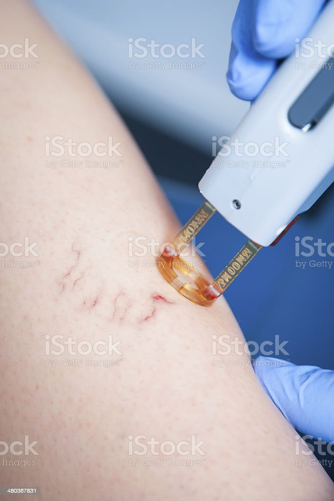 spider veins medical laser stock photo