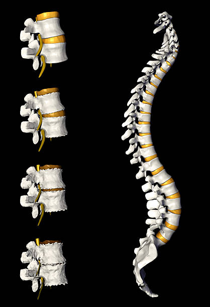 Spinal Column with degeneration stock photo