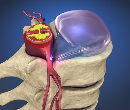 Ruggenmerg Onder Druk Van Uitpuilende Schijf 3d Illustratie Stockfoto en meer beelden van Anatomie