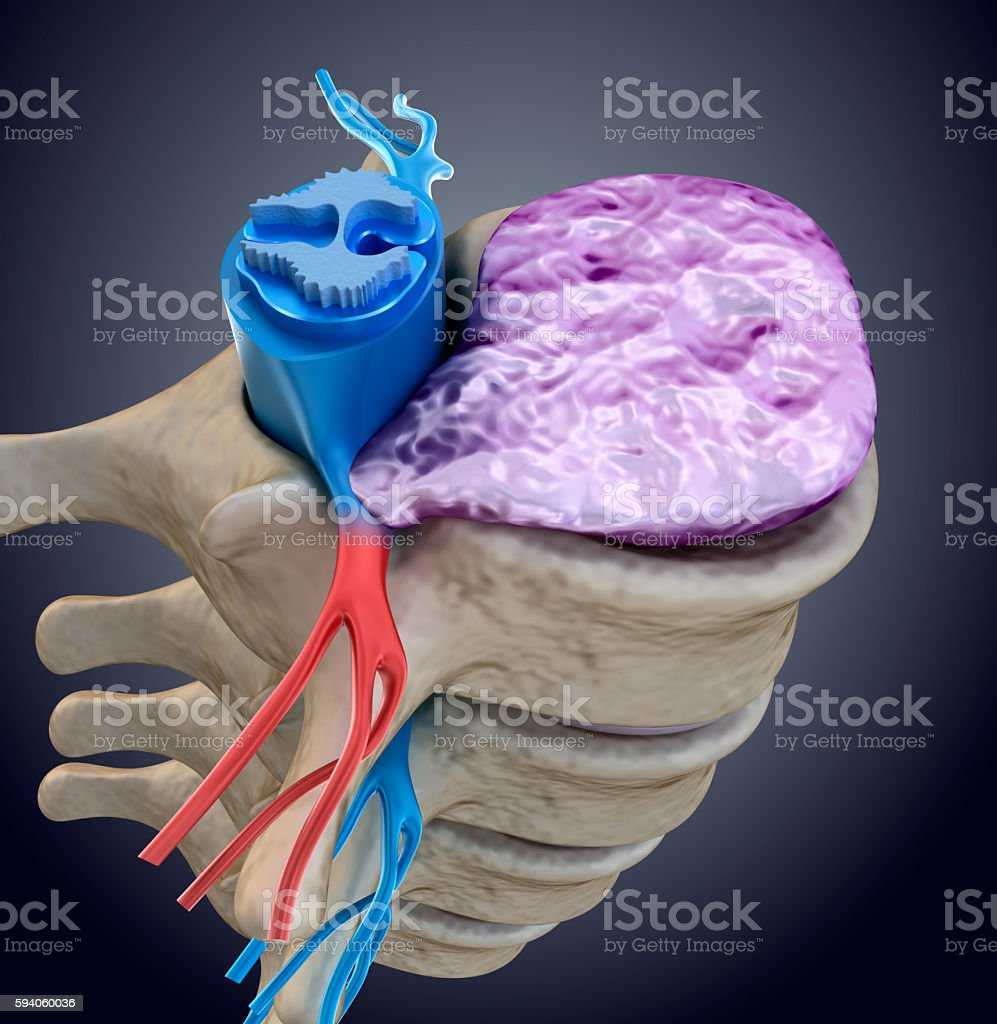 Spinal cord under pressure of bulging disc. stock photo