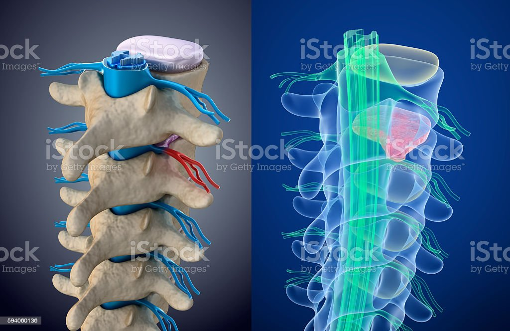 Spinal cord under pressure of bulging disc. Xray view. stock photo