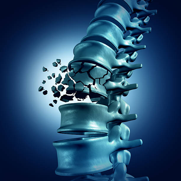 Spinal Fracture Spinal Fracture and traumatic vertebral injury medical concept as a human anatomy spinal column with a broken burst vertebra due to compression or other osteoporosis back disease. paralysis stock pictures, royalty-free photos & images