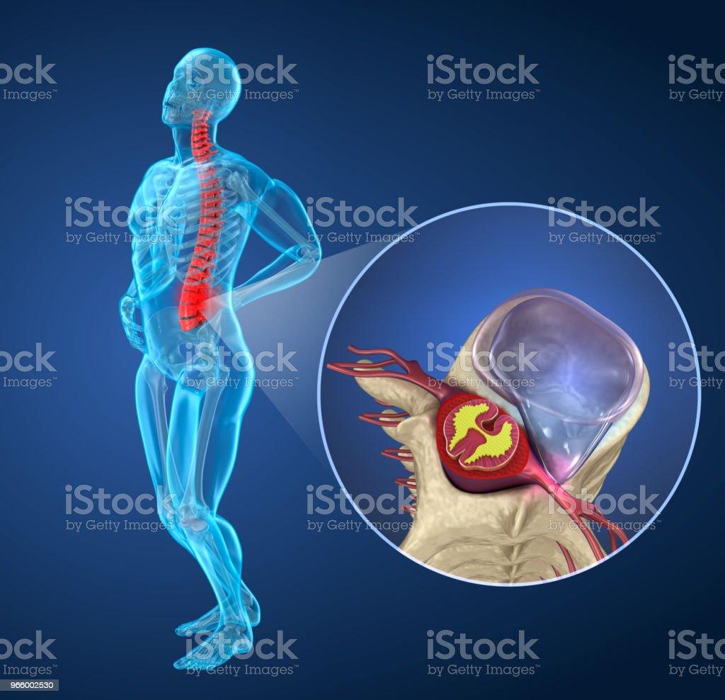 Pijn aan de wervelkolom aanval na hernia, man lijden van pijn aan de wervelkolom. 3D illustratie - Royalty-free Anatomie Stockfoto