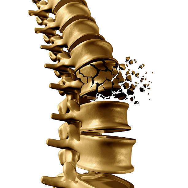 Spine Fracture Spinal Fracture and traumatic vertebral injury medical concept as a human anatomy spinal column with a broken burst vertebra due to compression or other osteoporosis back disease on a white background. human vertebra stock pictures, royalty-free photos & images