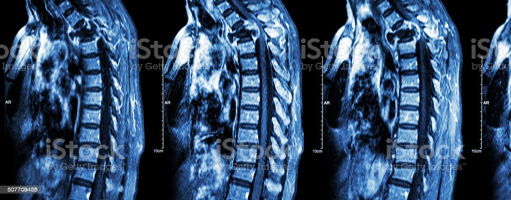 Spine metastasis ( cancer spread to thoracic spine ) stock photo