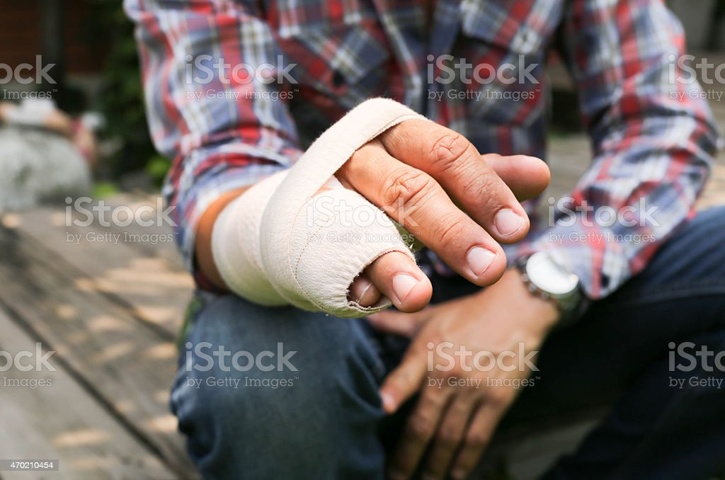 Splint broken bone  hand Injured stock photo