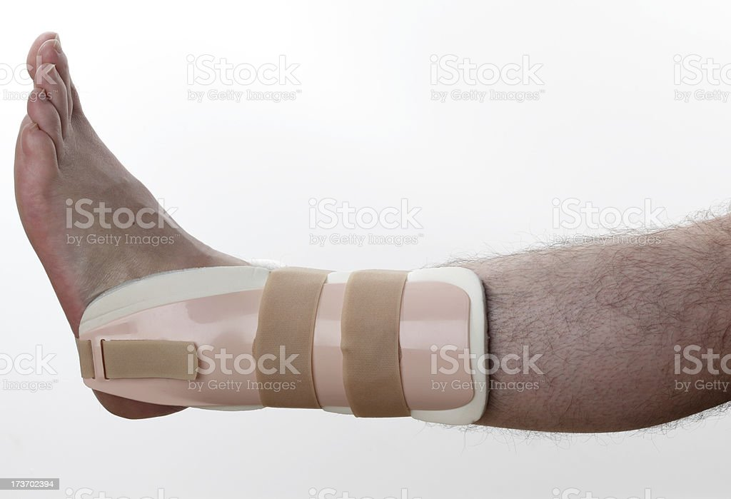 Splint for ankle injury stock photo