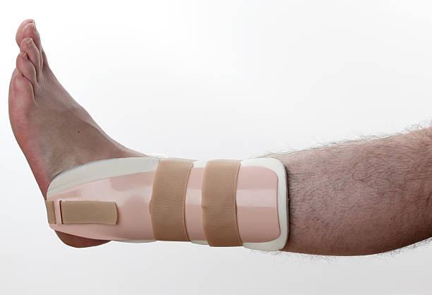 attelle pour les blessures à la cheville - mi jambe photos et images de collection