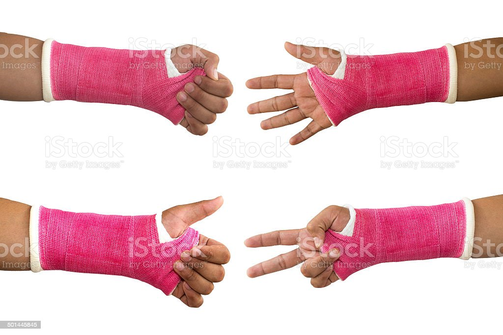 Splint,broken bone,broken hand. stock photo