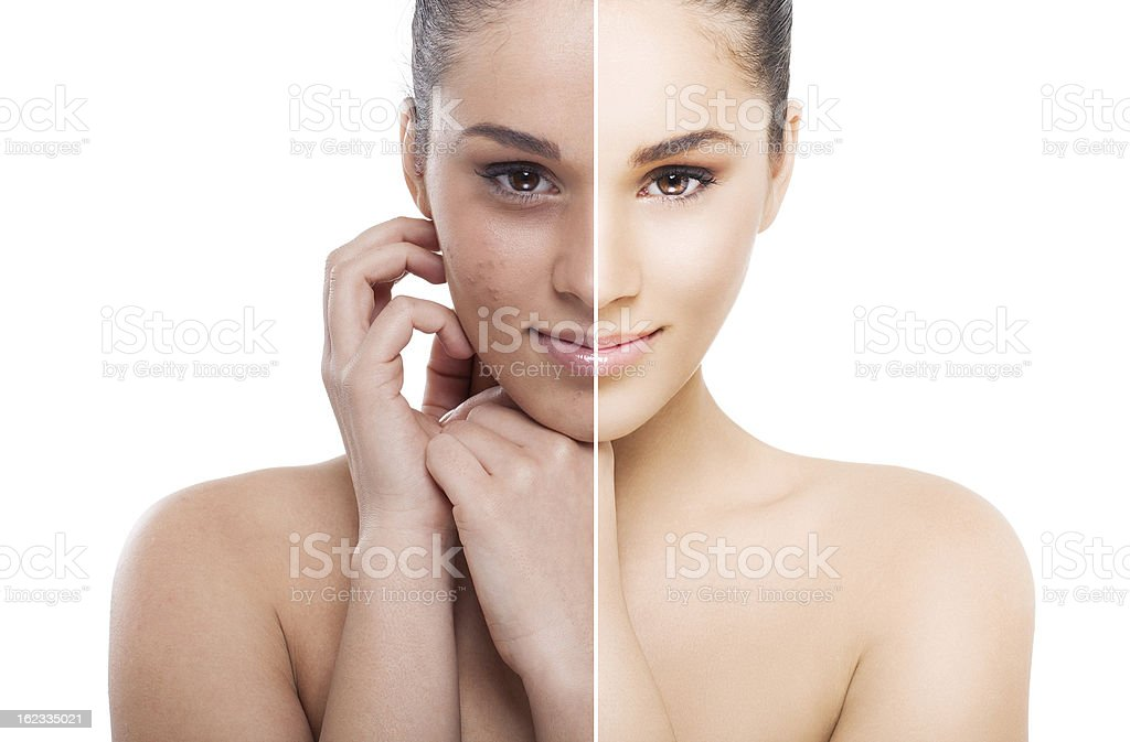 Split screen of a woman before and after stock photo
