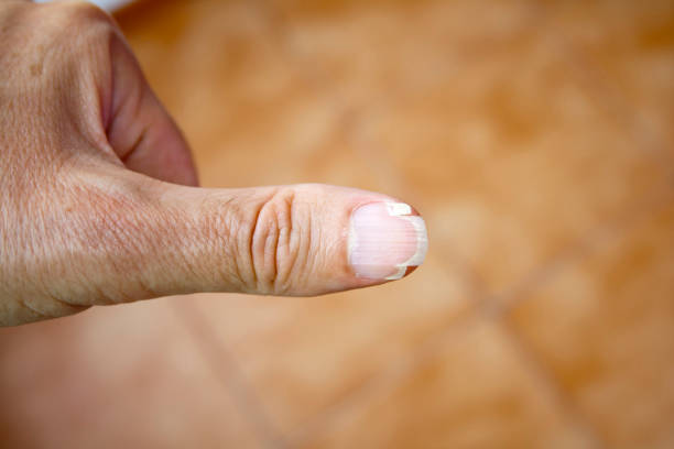 splitting nail on the thumb of an adult male. - fragility stock pictures, royalty-free photos & images