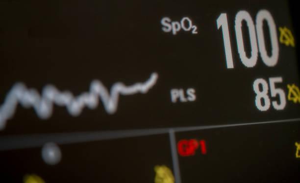 spo2 auf patientenmonitor stockfoto - farbsättigung stock-fotos und bilder
