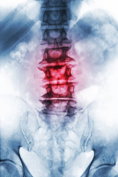 Spondylosis .  film x-ray lumbosacral spine of old aged patient show osteophyte , collapse spine from degenerative process . Front view stock photo
