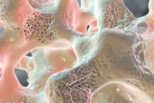 Spongy bone tissue affected by osteoporosis stock photo