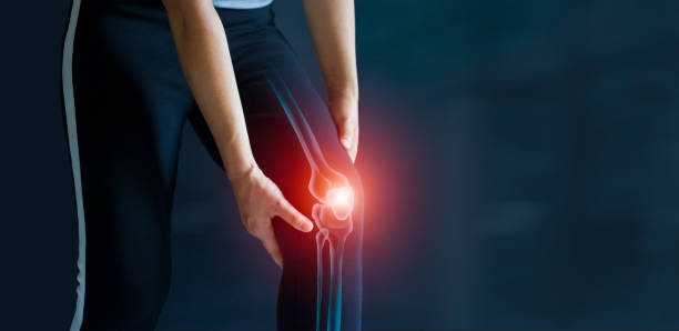 Sport woman suffering from pain in knee. Tendon problems and Joint inflammation on dark background. Healthcare and medical. stock photo