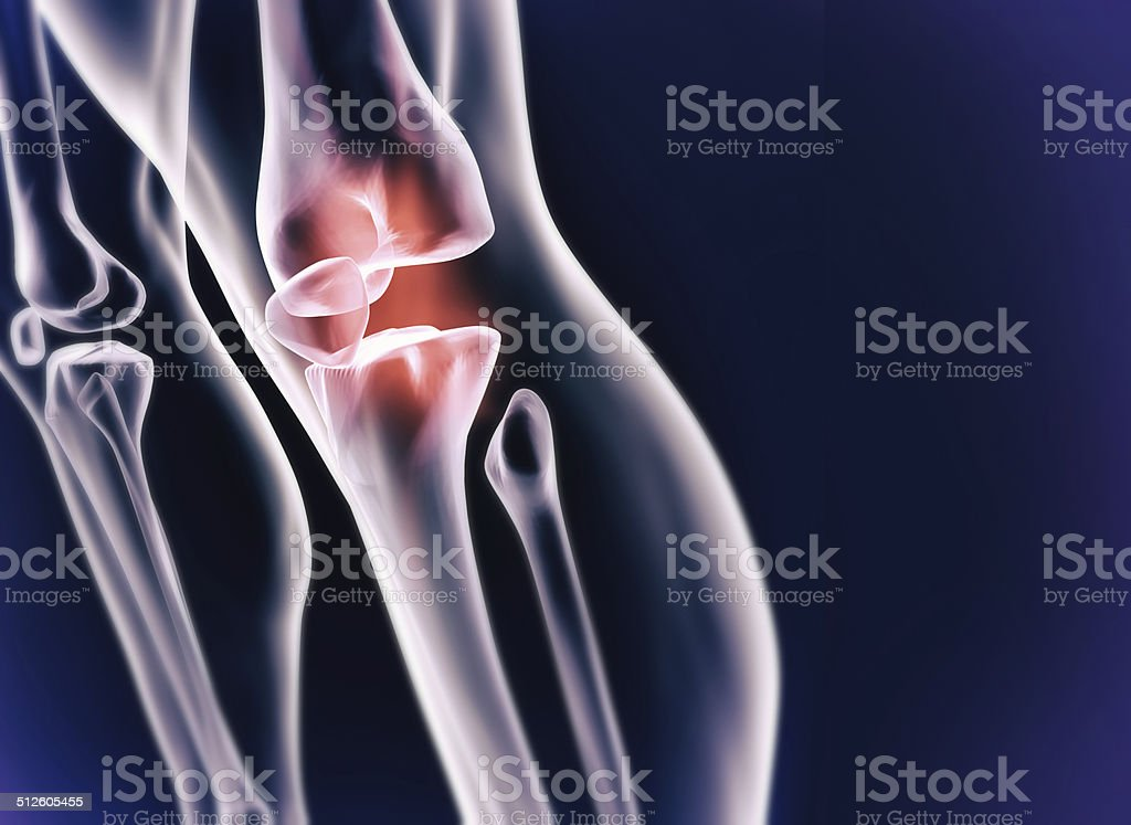 Sporting injury stock photo