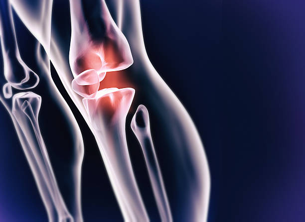 Sporting injury A cgi view of an inflamed joint isolated on blue cartilage stock pictures, royalty-free photos & images