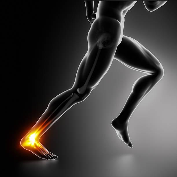 Sport Knöchel und Achillesferse Verletzungen Konzept – Foto