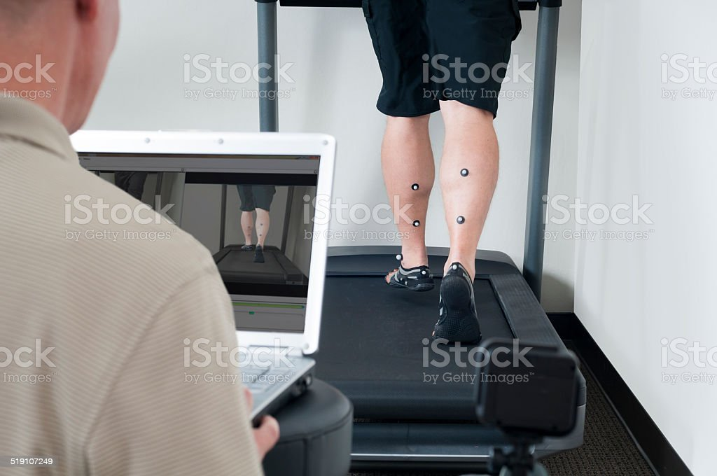 Sports Injury Physical Therapist Performing a Treadmill Video Analysis stock photo