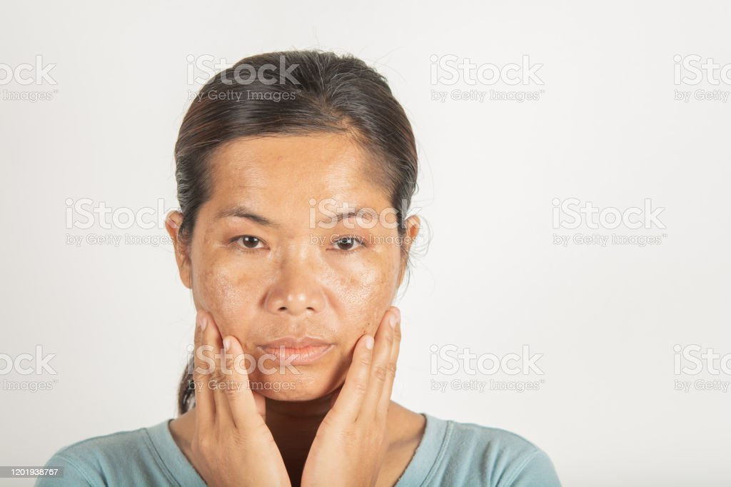 spot melasma dark and freckles spot melasma dark and freckles  facial treatment on face asian woman. and skin Problem Adult Stock Photo