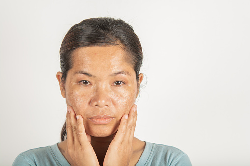 Spot Melasma Dark And Freckles Stock Photo - Download Image Now