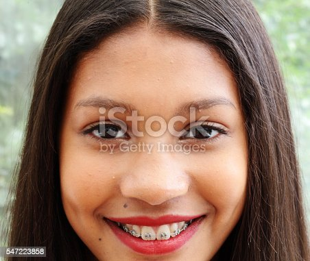 istock spotty female teenager smiling with brace 547223858