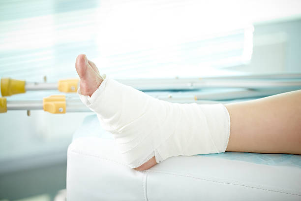 sprain of a foot - broken leg stock photos and pictures