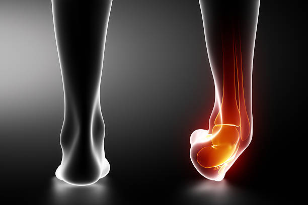 Sprained ankle black x-ray Sprained ankle black x-ray in 3D janulla stock pictures, royalty-free photos & images