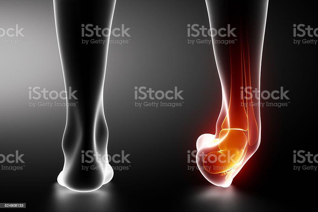 Schwarze x-ray Sprained Knöchel – Foto