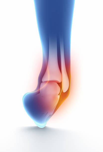 Sprained Knöchel isoliert auf weiß-blau – Foto