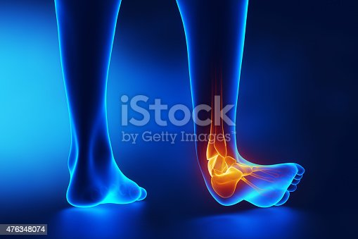 istock Sprained ankle blue x-ray 476348074