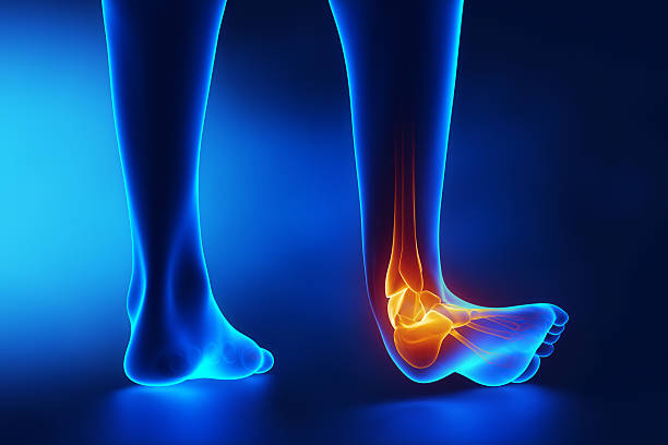 Sprained ankle blue x-ray Sprained ankle blue x-ray in 3D janulla stock pictures, royalty-free photos & images