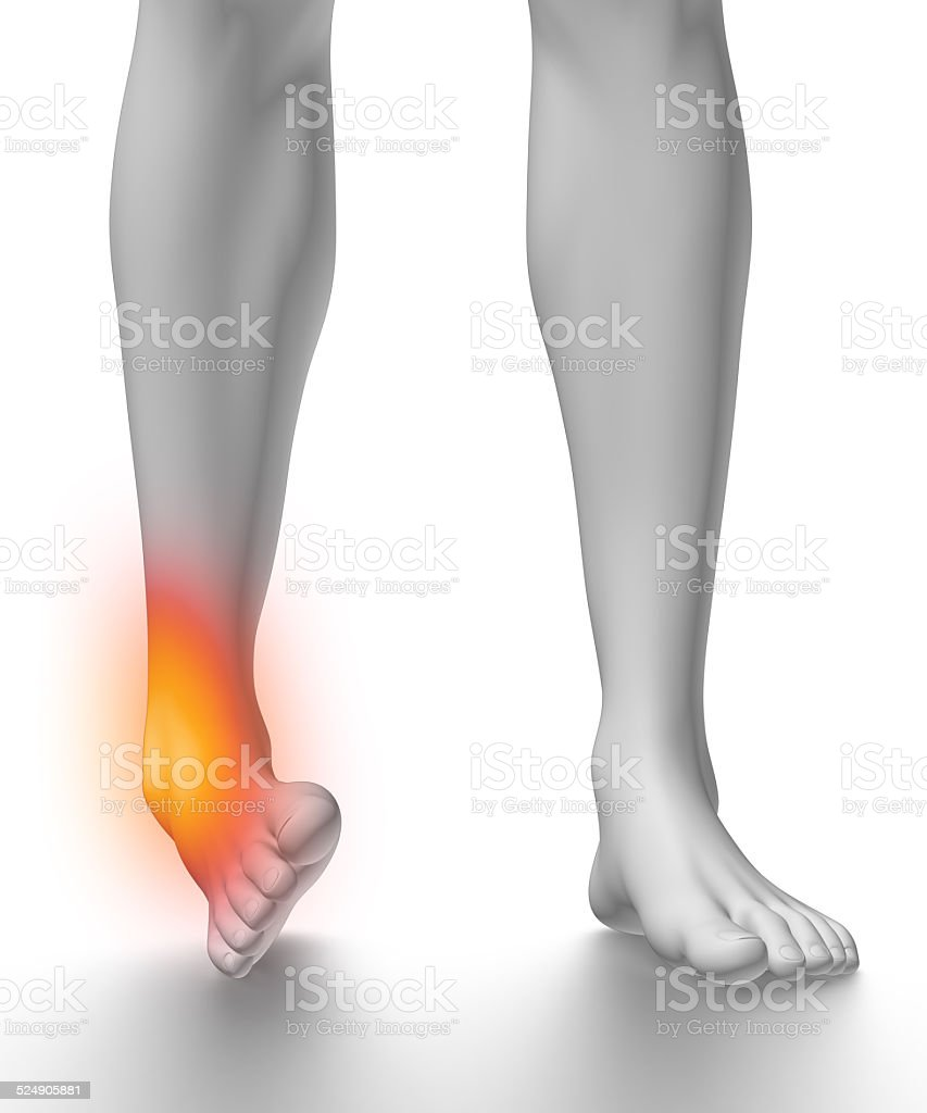 Sprained Ankle On White Stock Photo & More Pictures of Anatomy | iStock