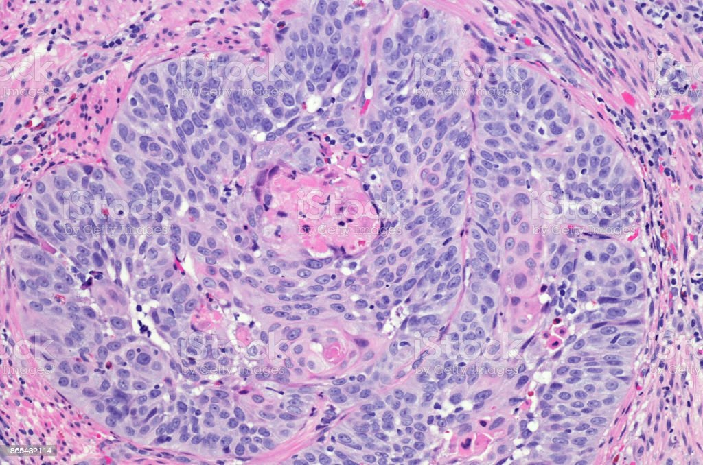 Squamous cell carcinoma of the esophagus. H&E stain stock photo