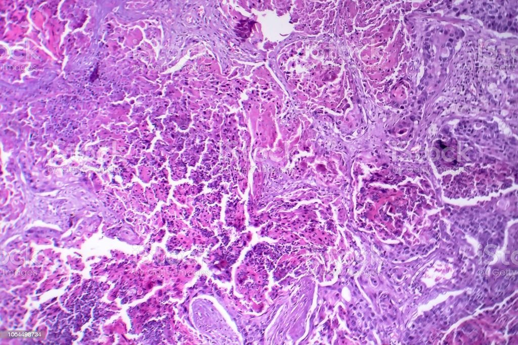 Squamous cell carcinoma of the lung stock photo