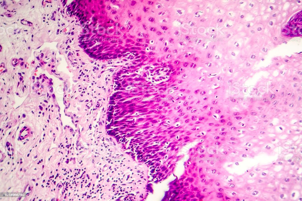 Squamous cell carcinoma stock photo