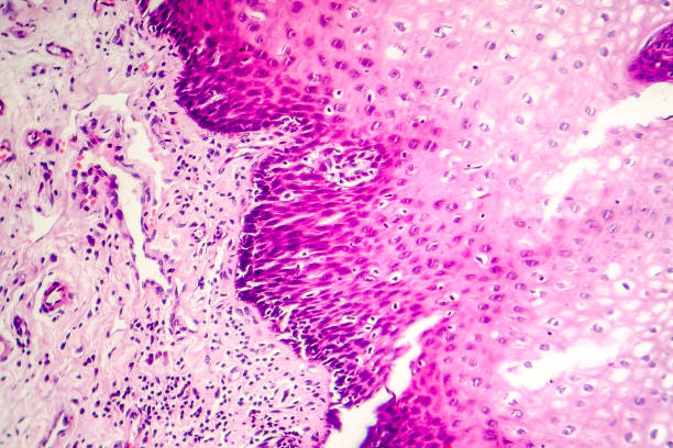 Squamous cell carcinoma Squamous cell carcinoma, light micrograph, photo under microscope carcinoma stock pictures, royalty-free photos & images