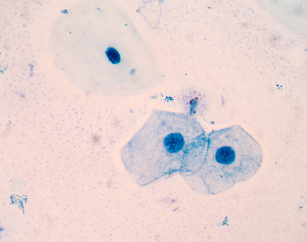 squamous cell stock photo
