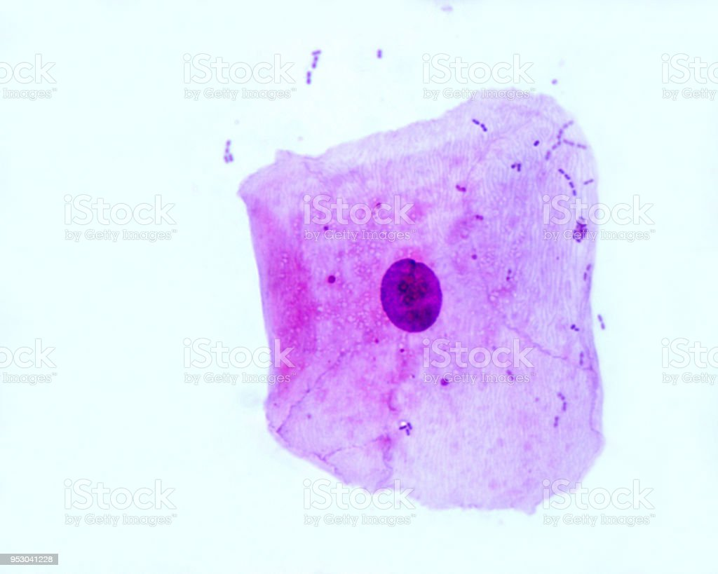 Squamous epithelial cell stock photo