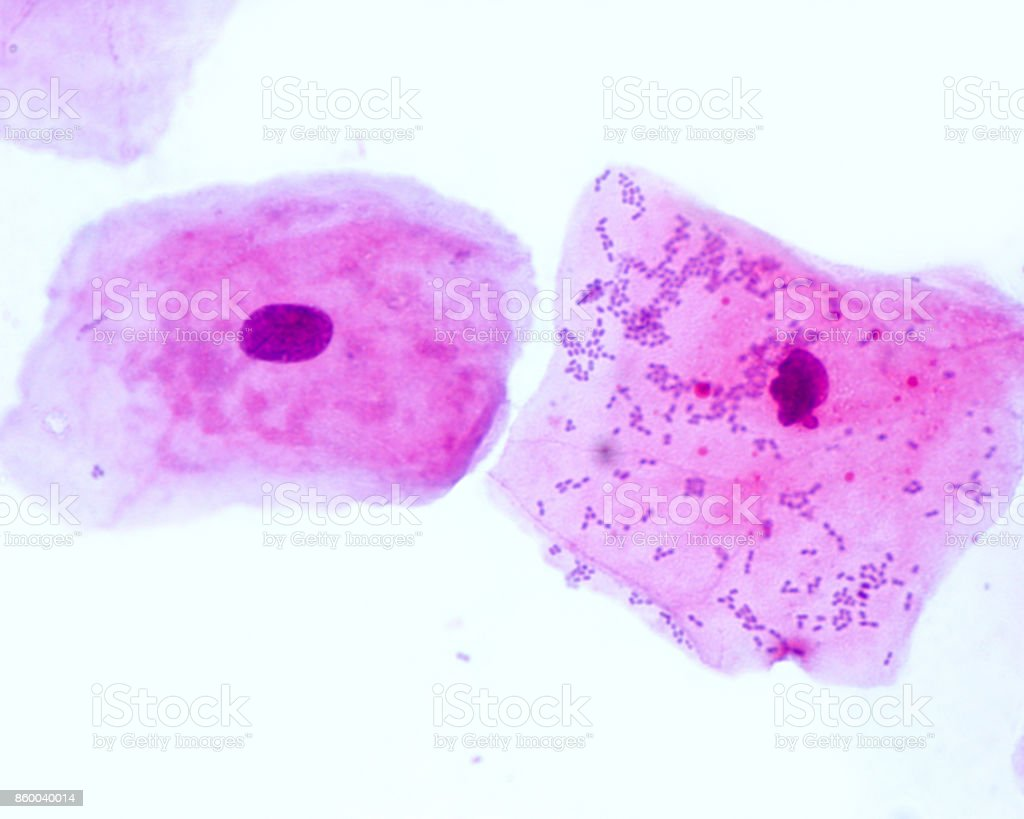 Squamous epithelial cells stock photo
