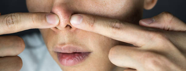 Squeezing acne on nose close up stock photo