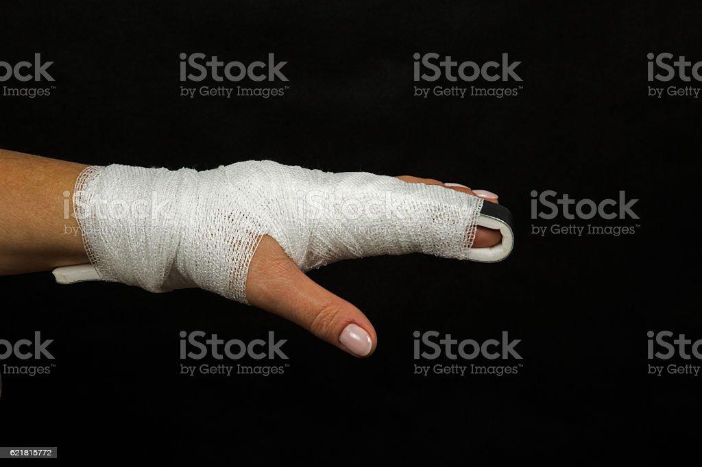 Stabilization of broken finger stock photo