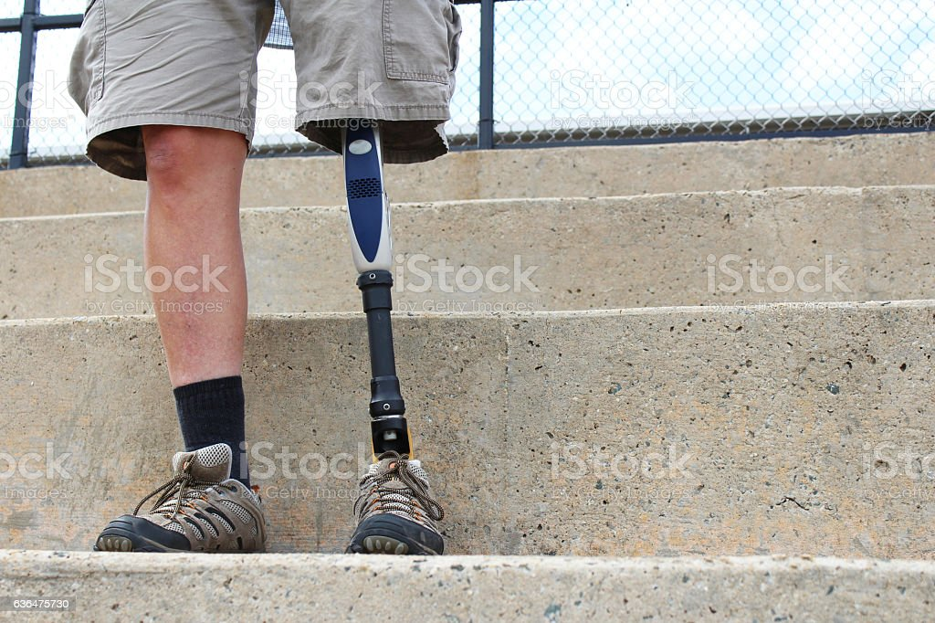 Standing man with prosthetic leg stock photo