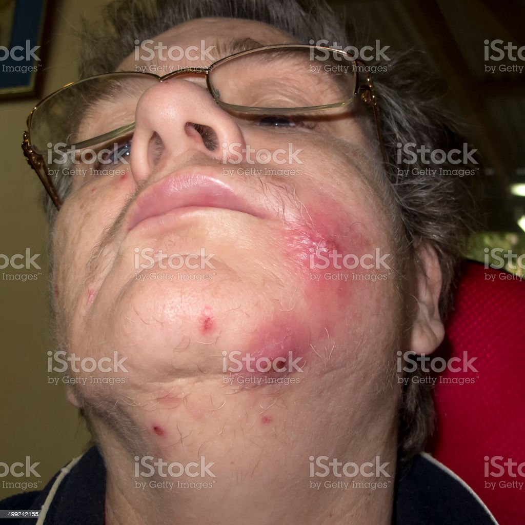 Staph infection on face stock photo