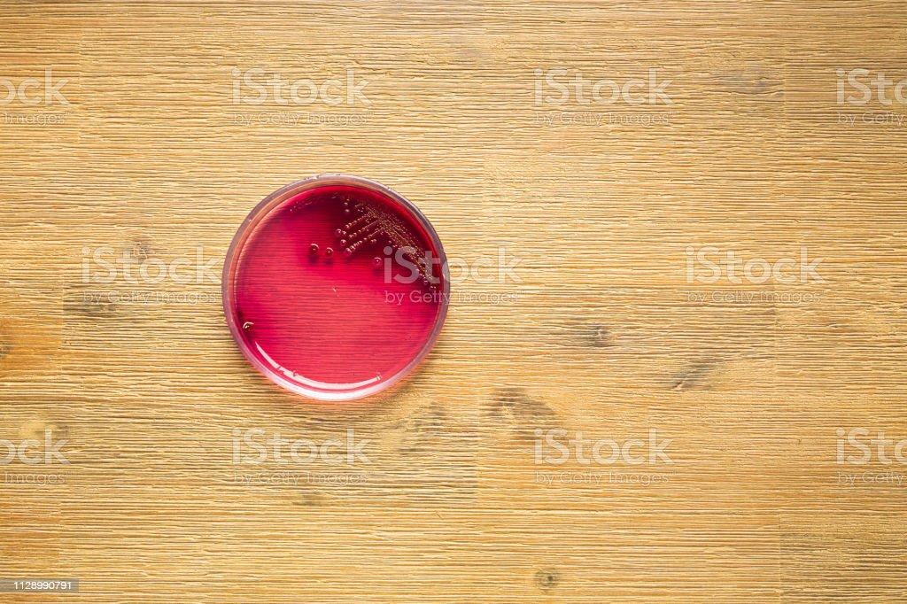 Staphylococcus Aureus-Bakterien im Blut Nährbodenplatte – Foto